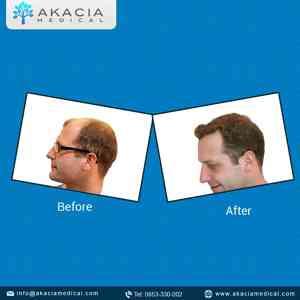 Photo by Akacia Medical