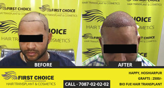 Photo by First Choice Hair Transplant & Cosmetics